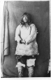 MP-0000.391.29 | Akshapat, an Inuit man from the Belcher Islands, Hudson Bay, about 1875 | Photograph | Dr. William Bell Malloch |  |